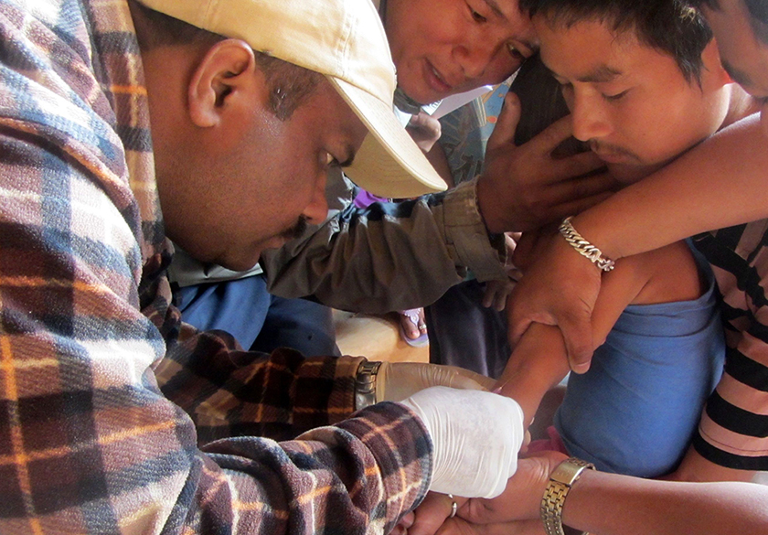Kala-azar screening in Nepal